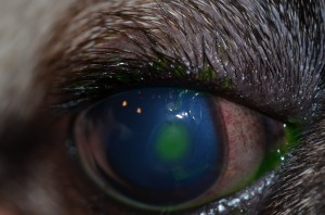 Corneal ulcer (stains green) with perilesional edema (blue)
